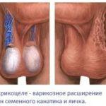 Боль в груди, температура при ГВ