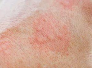 Может ли это быть атопический дерматит без зуда?
