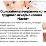 Вопросы по дистракции мягких тканей