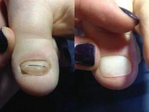 Отвалилась часть титановой нити с ногтя