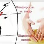 Уплотнение в области сонной артерии