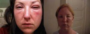 Опухает правый глаз после алкоголя