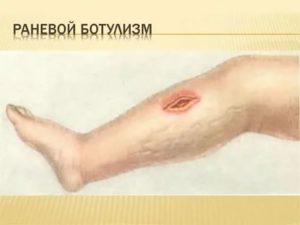 Заражение крови после операции