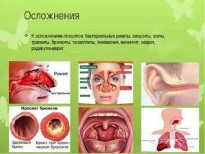 Хронический синусит и тонзиллит