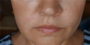 Боль и припухлость под носом