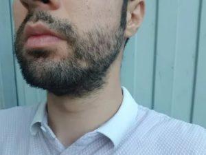 Выпадает борода