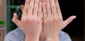 Отекают пальцы рук, к  какому врачу обратиться?