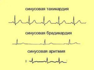 Аритмия и тахикардия