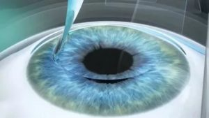 Простыла после лазерной коррекции зрения, чем грозит?