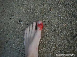 Порезал ногу о кораллы, ощущение онемения