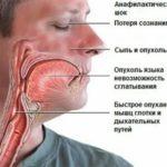 Как лечить опрелость за ухом?
