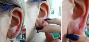 Проколола ухо, нагноилось, болит