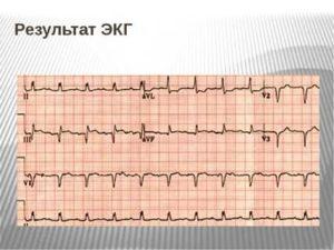 Результаты кардиограммы