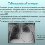 За продажу лекарств без рецепта аптеки хотят штрафовать на полмиллиона рублей