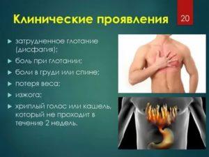 При глотании  отдается боль в спину