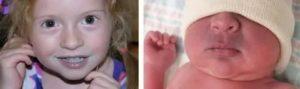 Из-за чего у ребёнка синеет нижняя губа?
