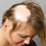 После бритья волосы на лобке местами перестали расти и стали мягче