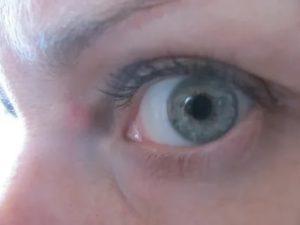Шишка между глаз
