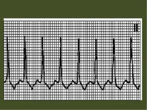 Связь кардиограммы и менструации