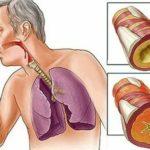 Можно ли заразиться туберкулёзом от Манту?