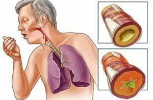 Сильный кашель с мокротой после операции на кишечнике