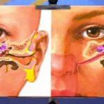 Запоры, прыщи на лице на фоне лечения гормонами и ОК