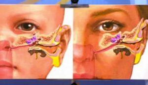 Двусторонний синусит, закладывает ухо