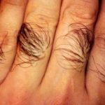 Выпадают волосы, камни в почках, понижен гемоглобин