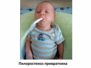Месячный ребенок срыгивает 5-8 раз в день