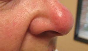 Опух и покраснел кончик носа