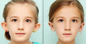 Не станет ли ребенок лопоухим из-за очков?