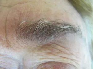 Седые волосы на ресницах
