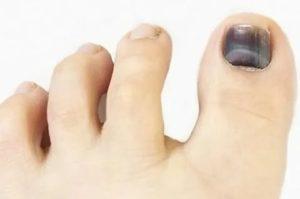 Травма ногтей на больших пальцах ног