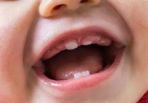 ОРЗ на фоне прорезывания зубов