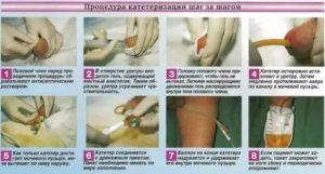 Боль после введения катетера