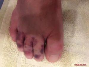 Посинел и опух палец на ноге
