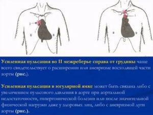 Пульсация в груди справа
