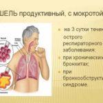 В какой дозе и как долго принимать антибиотик?