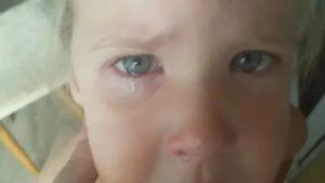 Ребенок ткнул пальцем в глаз, опух, слезы